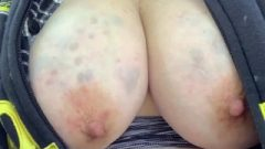 Exposing Meaty Abused Breasts As Cars Pass! (self-inflicted Bruises!)
